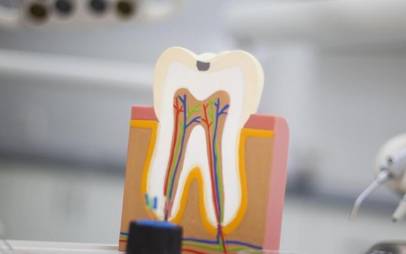 Leczenie kanałowe zęba pod mikroskopem.