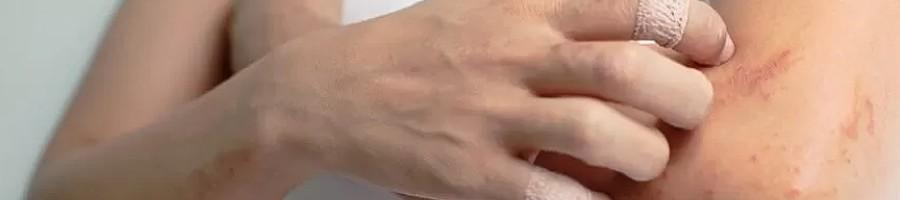 Łupież pstry - ręce