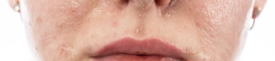 Łuszczenie się skóry na twarzy